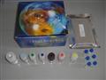 南京人N钙黏蛋白/神经钙黏蛋白试剂盒,人N钙黏蛋白/神经钙黏蛋白试剂盒