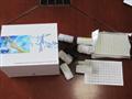 IgG人免疫球蛋白G(IgG)ELISA试剂盒