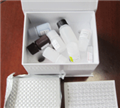 IgM人免疫球蛋白M(IgM)ELISA试剂盒