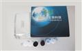 禽鹦鹉热(psittacosis)elisa试剂盒禽鹦鹉热(psittacosis)elisa试剂盒